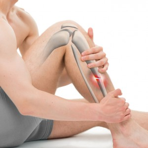 Transverse Fracture of the Tibia – Leg Fracture 3D illustration