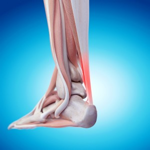 medically accurate illustration – painful achilles tendon