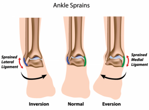 ankle-sprains