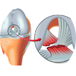 zerwanie więzadła krzyżowego acl