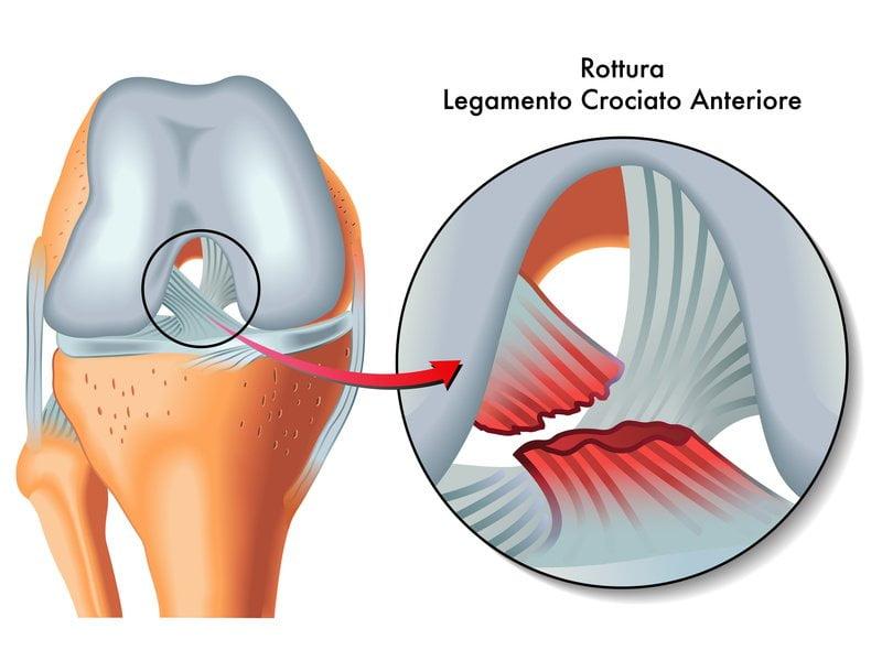 Zerwanie więzadła krzyżowego – ACL
