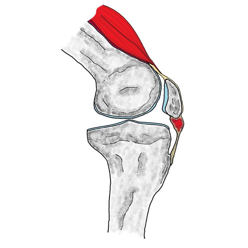 kolano-skoczka