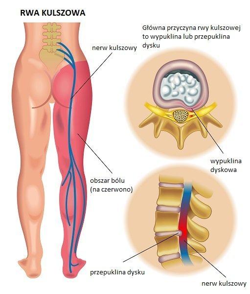 Rwa kulszowa leczenie kręgosłupa