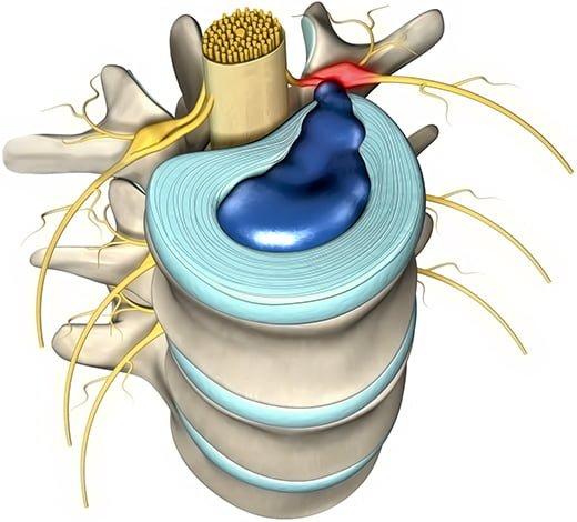 dehydratacja krążka międzykręgowego
